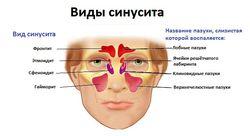 Односторонний синусит