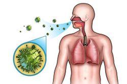 Золотистый стафилококк в горле