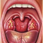 гнойники в горле