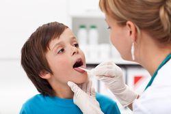 Лечение воспаленных миндалин у детей