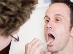 Лечение прыщей на задней стенке горла