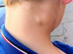 Злокачественная опухоль на шее и боли в кадыке