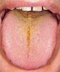 Налет на языке при панкреатите