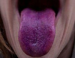О чем говорит фиолетовый язык