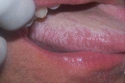 Гальванический стоматит