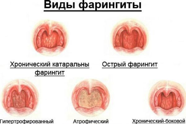 Болит горло и ухо с одной стороны