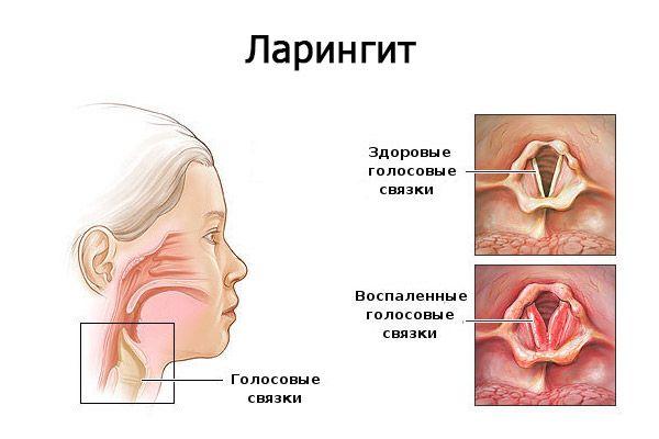 ларингит симптомы