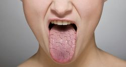 Причины сухости во рту