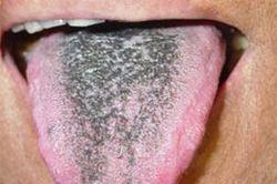 Чёрный налет на языке
