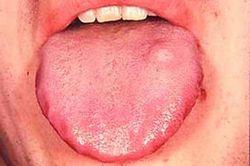 Флегмонозный глоссит